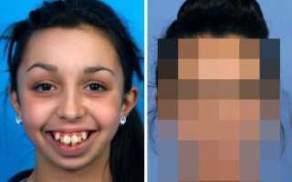 Невероятное преображение девушки после пластической коррекции челюсти.