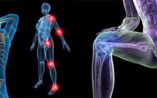 Укрепление связок и сухожилий рук. Что делать для укрепления суставов и связок